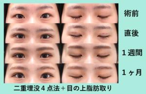 『重い瞼がすっきりぱっちり! 埋没+目の上脂肪取り』の画像