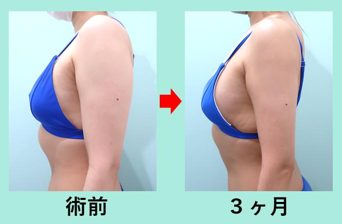 二の腕、脂肪吸引+ベイザー_術後3ヶ月ダウンタイム、弛まない