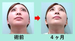 『ここまで変わる! 顔の脂肪吸引 + バッカルファット除去』の画像