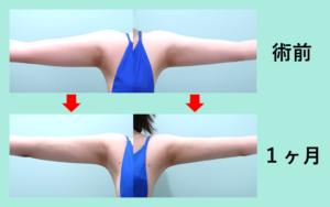 『超スッキリ! 二の腕をしっかりナチュラルに細くしましょう!』の画像