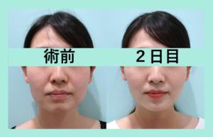 『「小顔マイクロリポ法+糸リフト」気になるダウンタイムは?』の画像