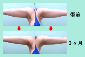 『ほそっ!!肩からストンと落ちるように伸びる二の腕に!』の画像