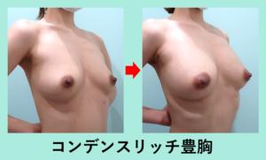 『何故、脂肪豊胸のみで、シリコンバッグ豊胸なみにしっかりサイズが大きくなるのか?』の画像