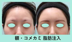 『額の印象でこんなに美人顔に!額・こめかみ脂肪注入』の画像