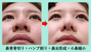 『「 ニンニク鼻 」を様々な手法を組み合わせて自然に小さなお鼻へ!』の画像