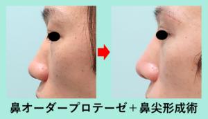 『鼻手術の一番人気 「鼻尖形成術」+「プロテーゼ」』の画像