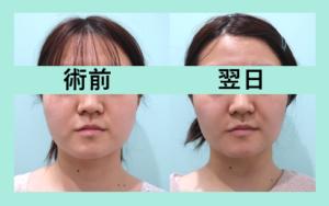 『しっかり吸引の翌日をお見せします! 顔の脂肪吸引』の画像