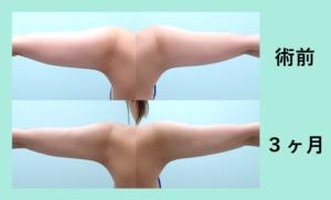 『二の腕外側の張り出しを吸引「ストン」とスッキリ二の腕に!』の画像
