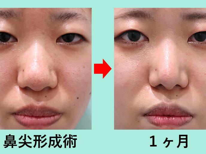 鼻形成の症例参考画像