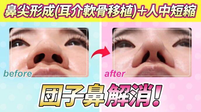 WOMの鼻尖形成、人中短縮YouTubeサムネ