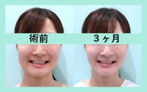 『『 左右差改善 』こだわりのオーダーメイド小顔治療』の画像