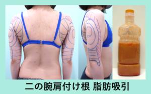 『「 二の腕脂肪吸引 」 滑らかで芸術的な仕上がりをトコトン追究しています。』の画像
