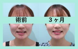 『自然と笑顔が増える! 小顔治療には『 お値段以上 』の価値があります』の画像
