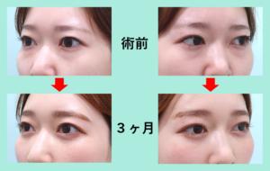 『涙袋の形をハッキリと目立たせる!「目の下の脂肪取り」』の画像