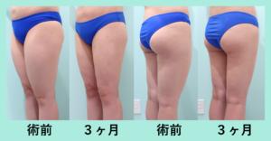 『「太ももの脂肪吸引」しっかり細くナチュラルな仕上がりを追究しています!』の画像