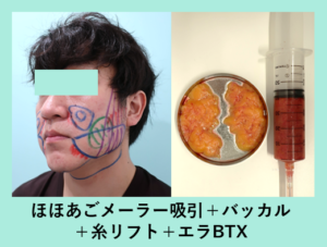 『男性にも大人気の小顔治療! 渋カッコいいシャープな印象に!』の画像