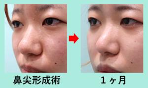 『「鼻尖形成術(耳介軟骨なし)」でここまで鼻先が細くなる!!』の画像
