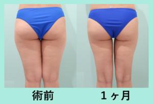 『超ナチュラルな太もも脂肪吸引 匠による吸引の極意を解説します』の画像