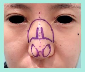 『骨切り・鼻尖形成(クローズド法)で大きな鼻をエレガントな鼻に!』の画像