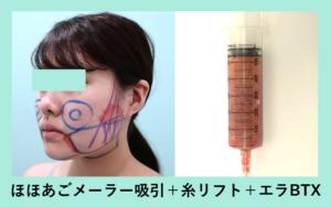 『「メーラーファット」を含めた顔全体「ほほあご下メーラー」の脂肪吸引』の画像