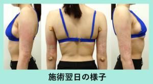 『洗練された「二の腕脂肪吸引」の技術で、仕上がりはもちろん、ダウンタイムも最小を目指しています!』の画像