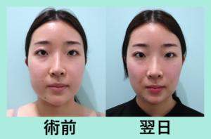 『「 施術翌日の腫れ 」を最小限に抑えた顔の脂肪吸引』の画像